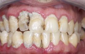 Parodontite cronica - Fig.3