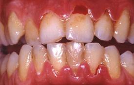 Parodontite necrotizzante - Fig.5