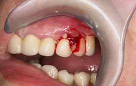 Ascesso del Parodonto - Fig.6