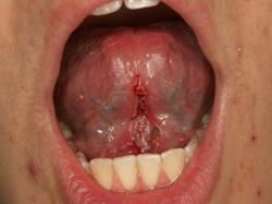 Frenulectomia orale - Dopo il trattamento laser