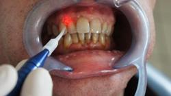 Laserterapia - Durante la cura laser