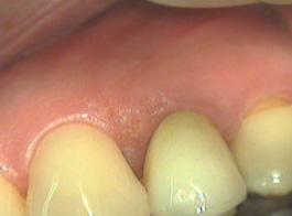 Parodontite completa guarigione