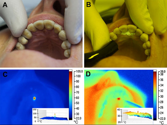 Terapia non chirurgica della parodontite