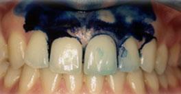 Parodontite laserterapia - Fig.1