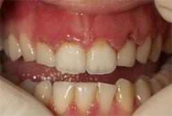 Parodontite gengive necrotizzate inizio