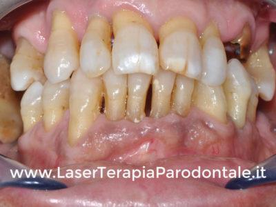 Parodontite: caso di perdita denti