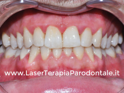 Caso di parodontite cronica