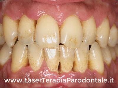 Parodontite: sintomi