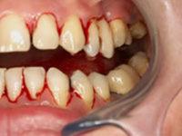 prevenzione della parodontite