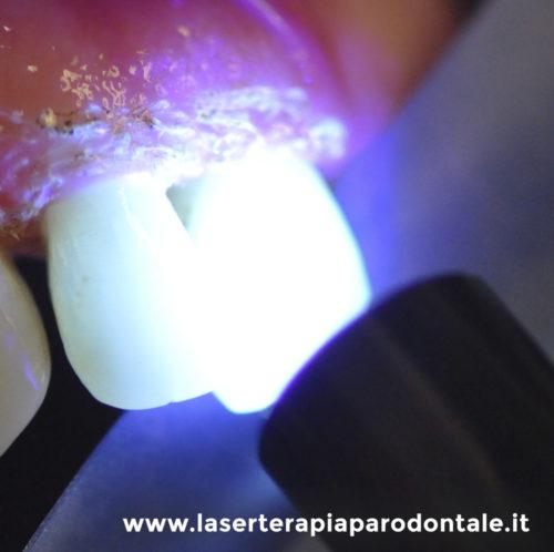 Azione decontaminante con Laser